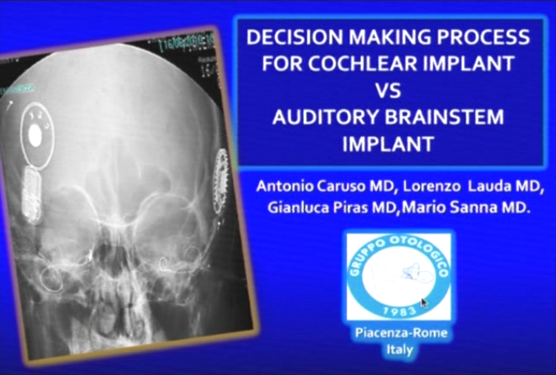 Oticon Medical Advanced Surgical Course - Decision Making process for cochlear implant vs auditory brainstem implant