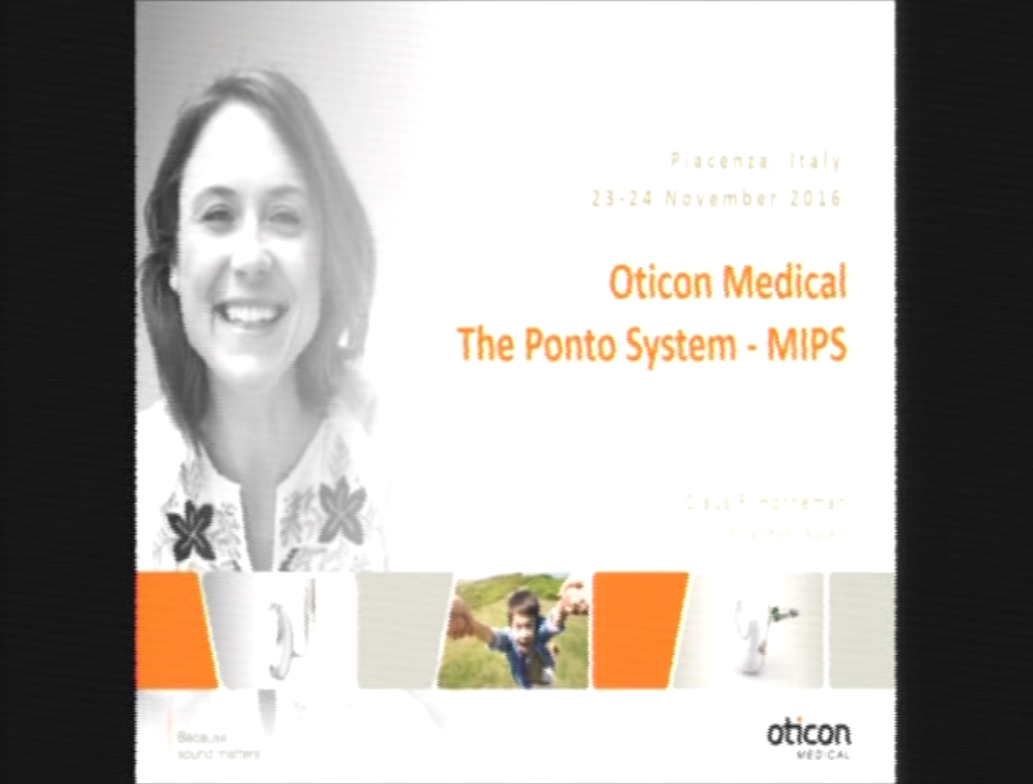 Oticon Medical Advanced Surgical Course - The Ponto System - MIPS