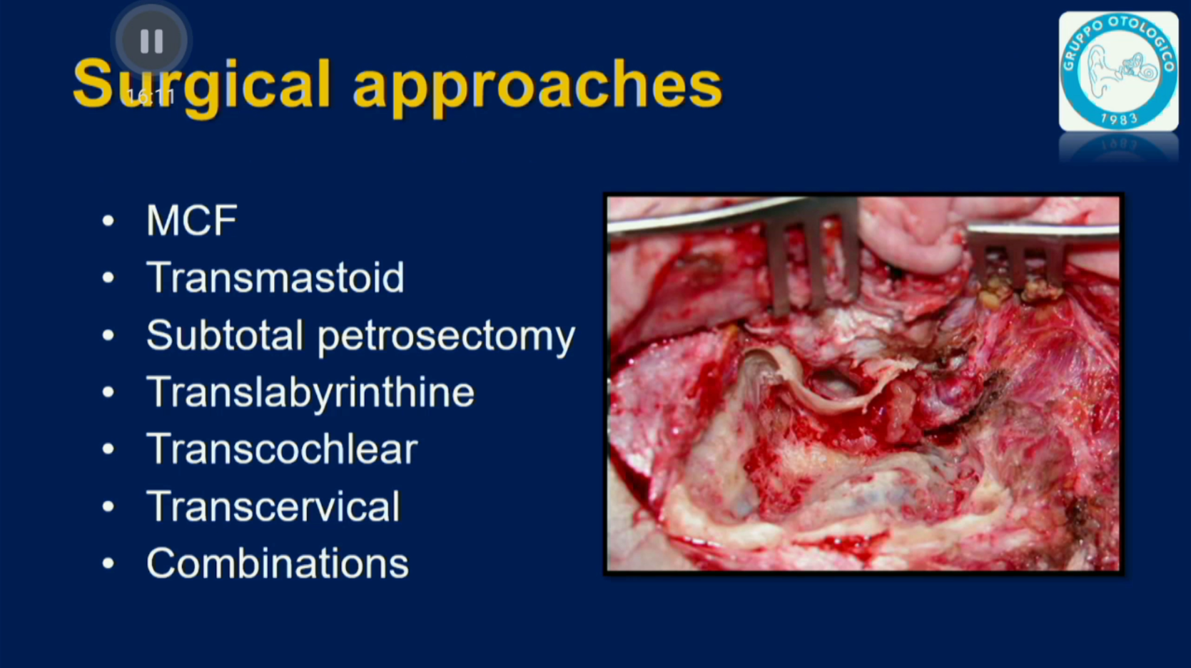 Facial Nerve Tumors - 04.1 - Surgical Approaches Part 1