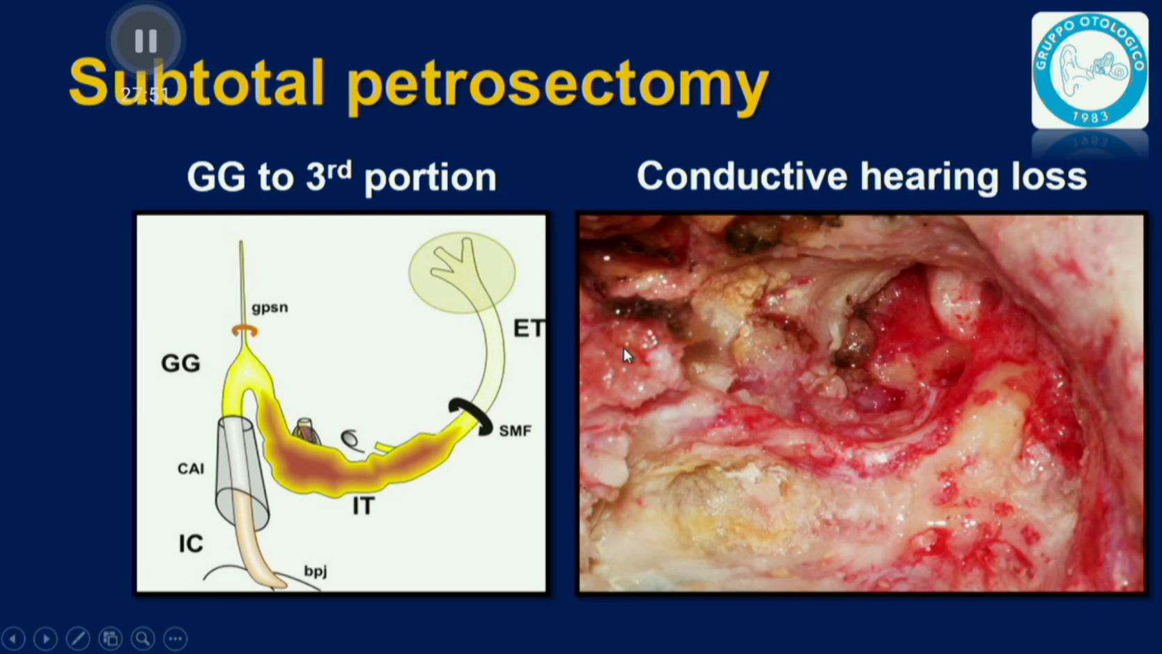 Facial Nerve Tumors - 04.4 - Surgical Approaches Part 4