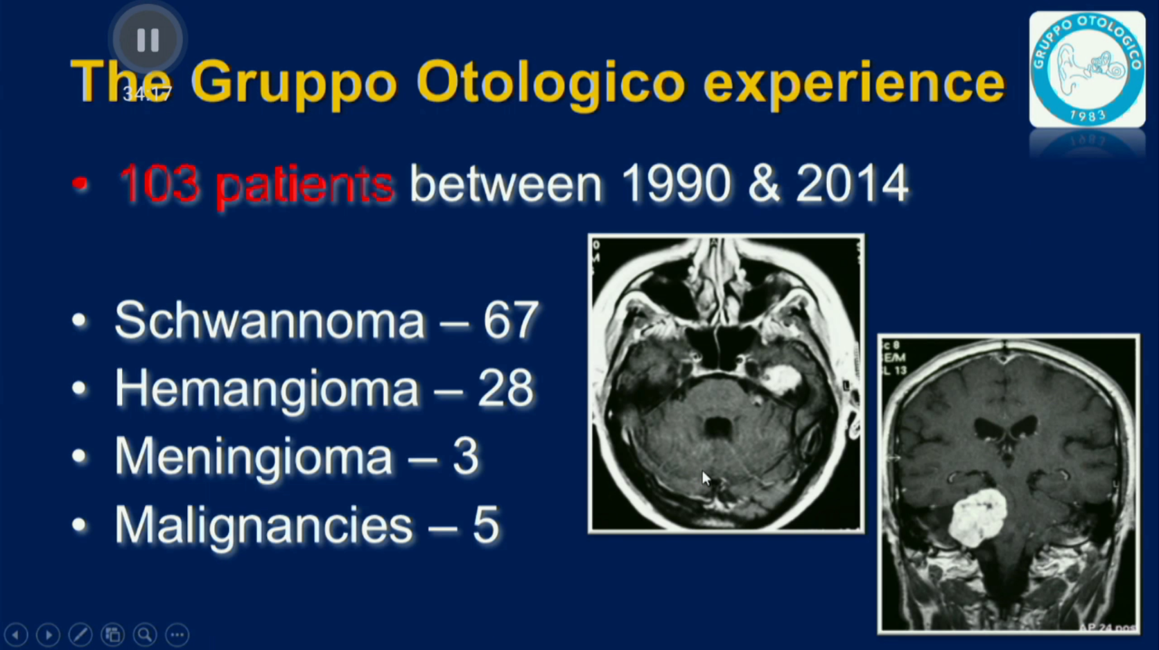 Facial Nerve Tumors - 06 - Gruppo Otologico Data and Results