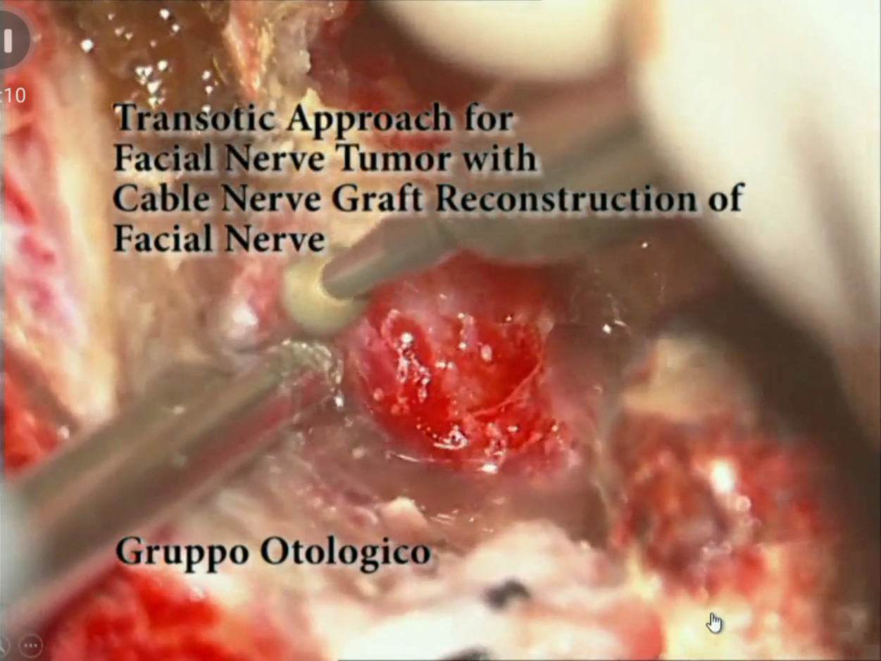 Facial Nerve Tumors - 02 - Transotic Approach