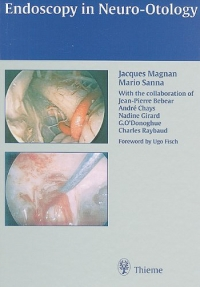Endoscopy in Neuro-Otology