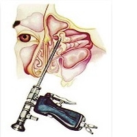 Functional endoscopic sinus surgery (FESS)